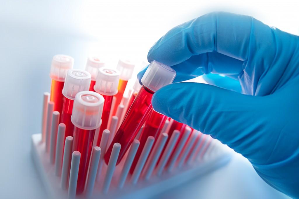 Как вводится иммуноглобулин при беременности