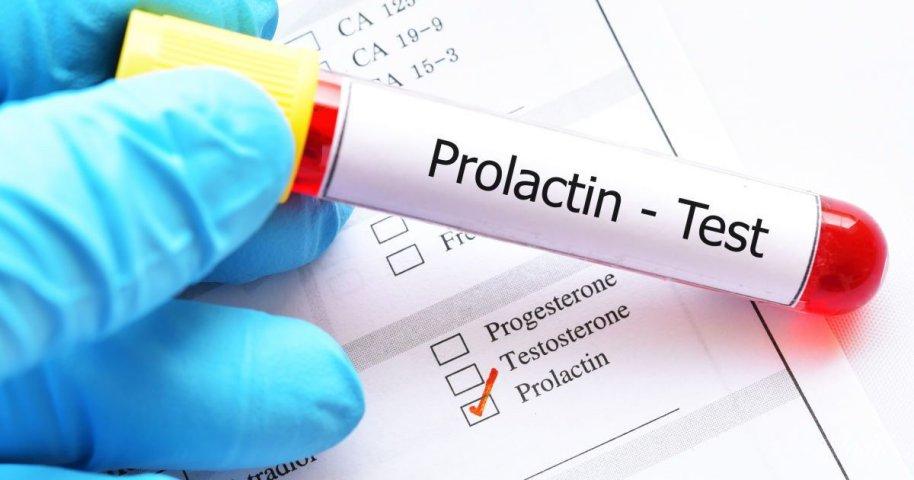 Повышенный пролактин при климаксе