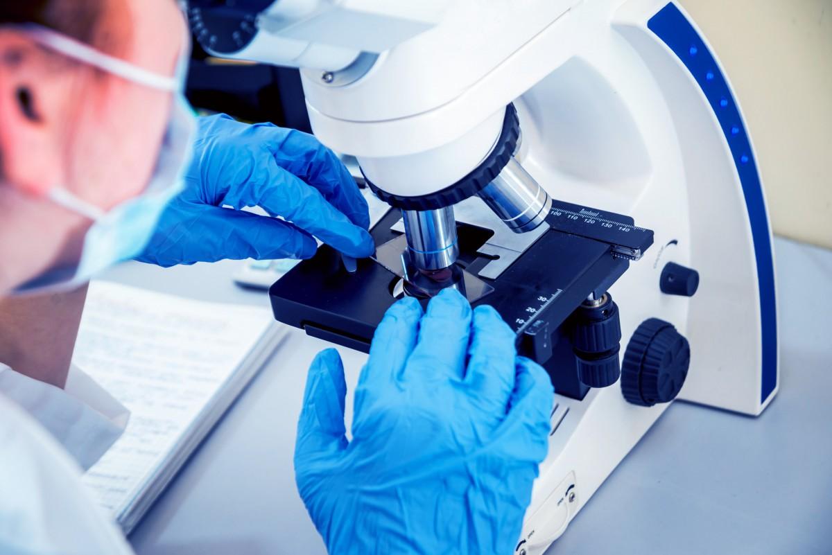 Как считаются тромбоциты по методу Фонио