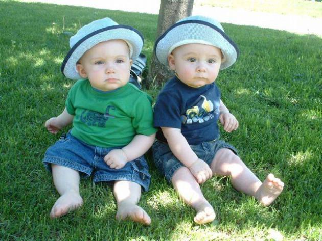 Однояйцевые близнецы