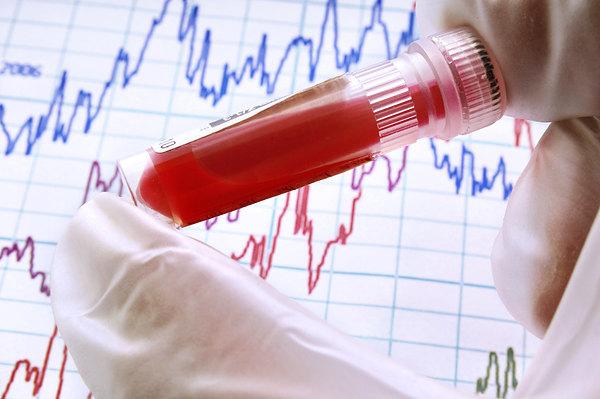 Нормы билирубина в крови у мужчин