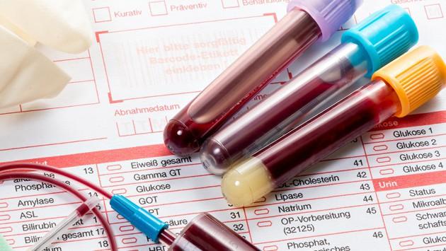 Анализ крови и мочи на ХГч: как его правильно сдавать