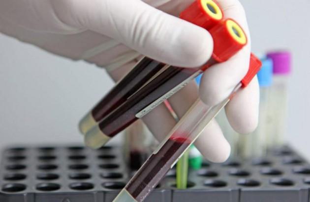 Гликозилированный гемоглобин: что это за анализ?