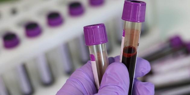 Какая диагностика на инфекции лучше - ПЦР или ИФА?