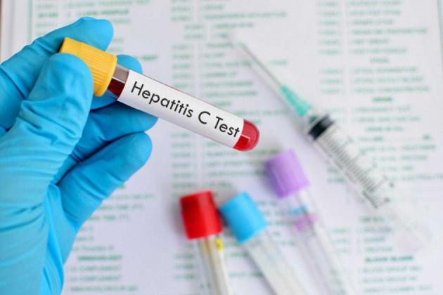 ПЦР или ИФА тестирование на гепатиты типов В и С