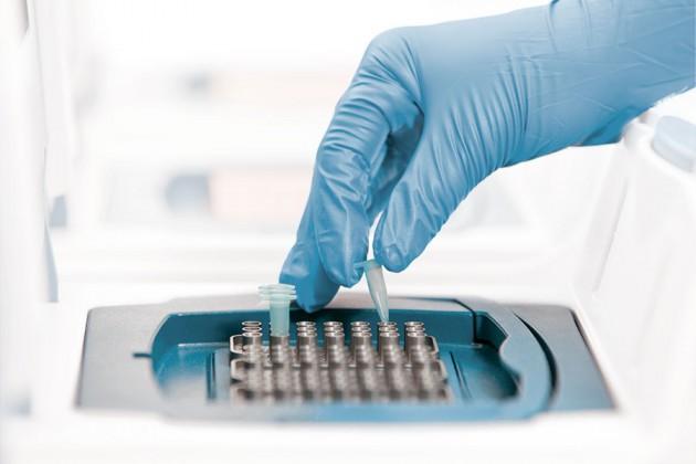 Лабораторная диагностика и тестирование ковида
