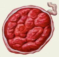 Гиперплазия плаценты во время беременности
