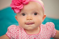Короткая уздечка языка у ребёнка: серьёзная ли проблема?