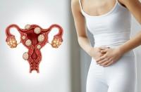 Новинет при миоме матки: нюансы терапии