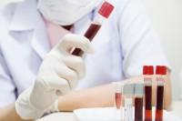 О гемиглобинцианидном методе определения гемоглобина