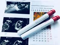 Стимуляция овуляции гонадотропинами у женщин