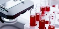 Методы исследования группы крови