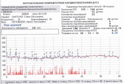 синхронная запись частоты сердечных сокращений плода