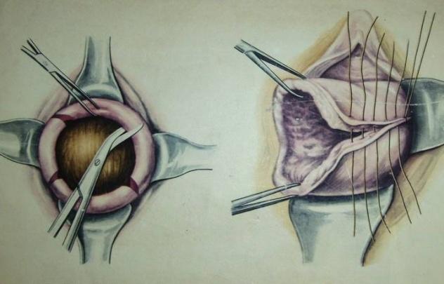 ушивание разрыва шейки матки
