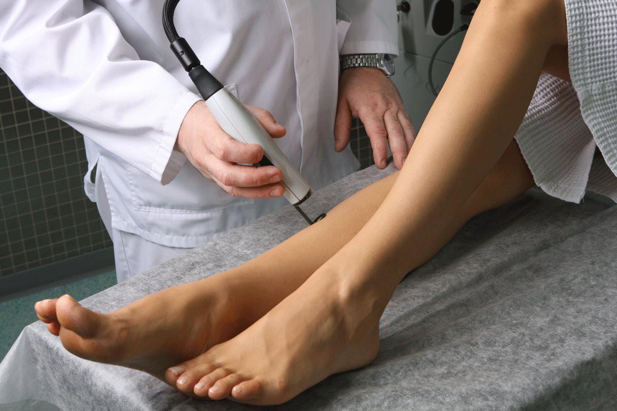 Способы лечения варикозной болезни