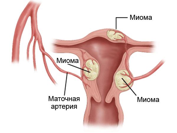 Как выглядит миома в матке