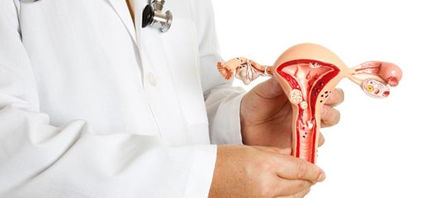 Подготовка к ЭКО проводится с учетом размера узла миомы