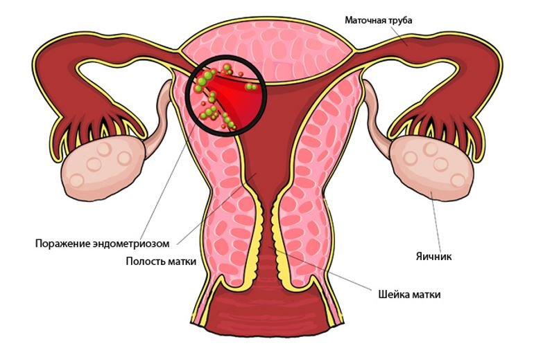 Фолиевая кислота при эндометриозе 15