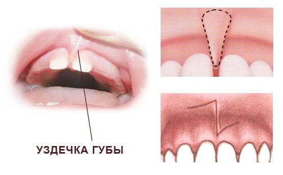 пластика на верхней губе