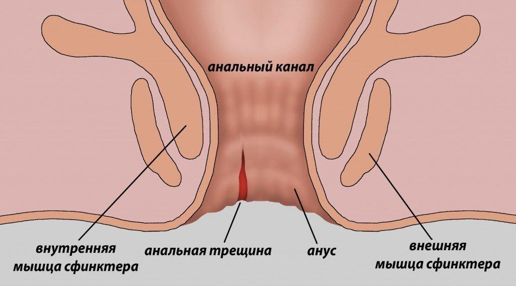 vospalenie-mezhdu-anusom-i-vaginoy