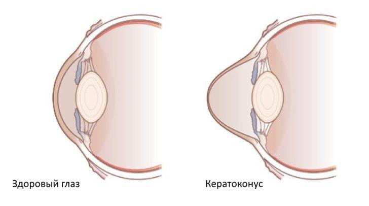 роговица при кератоконусе