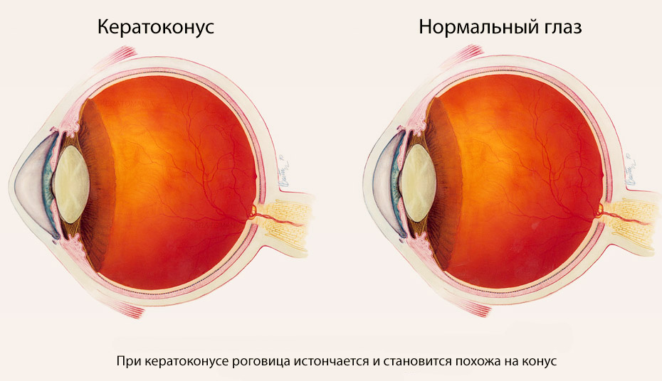 keratoconus causes symptoms signs diagnosis and Nkcf is premiere keratoconus educational awareness organization in the world, dedicated to increasing awareness, understanding and education of keratoconus.