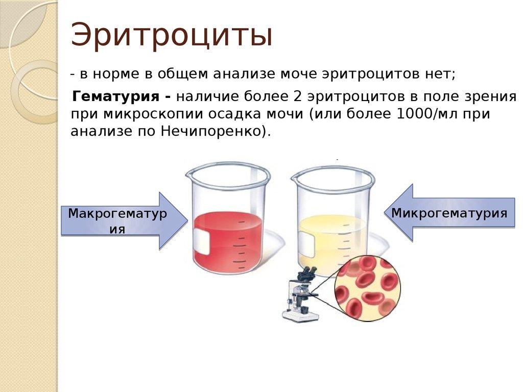Повышенные эритроциты в моче у беременной 15
